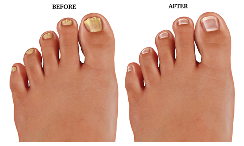 How to keep your nails healthy with natural ingredients -